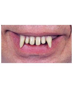 Teeth Glow Ghoulio Wacky Chp